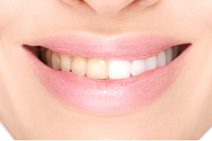 Dental-Whitening-Bleaching