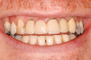 Dental-Makeover-Before
