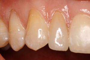 Porcelain-veneer-2-After-1