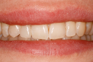 Porcelain-veneer-2-after-2