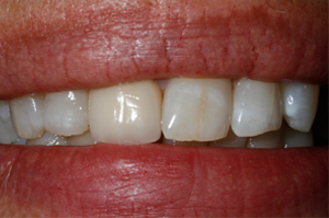 Porcelain-veneer-Before