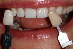Tooth-bleaching-after-2