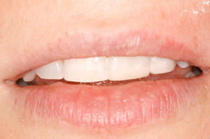 White-fillings-2-after