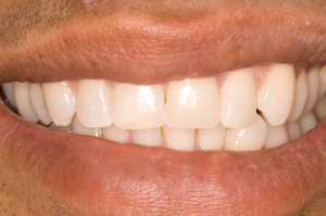white-fillings-3-after